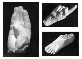photograph of plaster casts made from wax moulds of 'phantom limbs' obtained during siittings