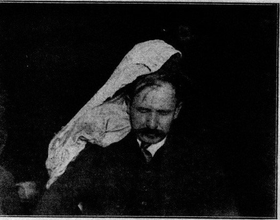 Photograph of Franek Kluski during a seance showing the forms of clothing and hair