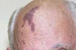 Mikhail Gorbachev birthmark