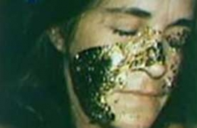 photo of Katie's face with gold leaf